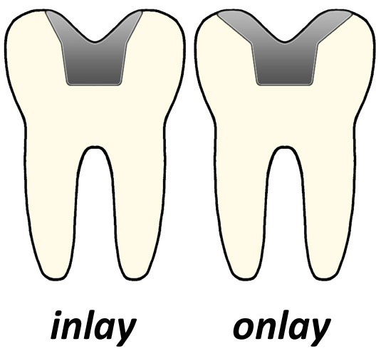 inlay vs onlay