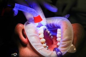 dental fillings and dental bonding