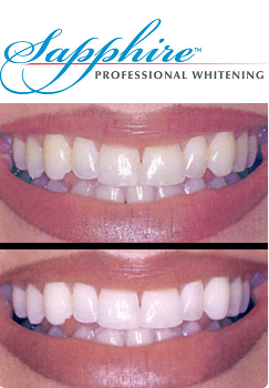 teeth whitening mission viejo ca